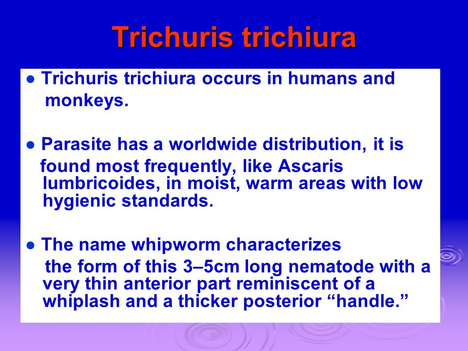 Trichuris trichiura ● Trichuris trichiura occurs in humans and