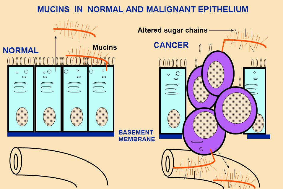 MUCINS IN NORMAL AND MALIGNANT EPITHELIUM