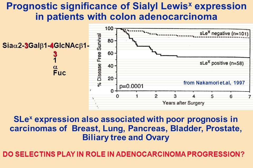 Prognostic significance of Sialyl Lewisx expression in patients with colon adenocarcinoma