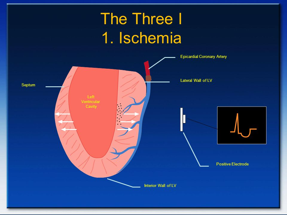 The Three I 1. Ischemia Epicardial Coronary Artery. Lateral Wall of LV. Septum. Left. Ventricular.