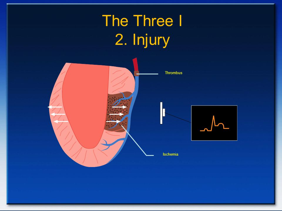 The Three I 2. Injury Thrombus.