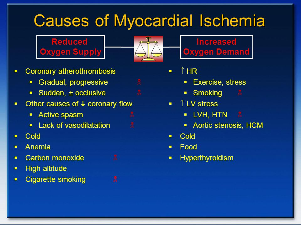 Causes of Myocardial Ischemia