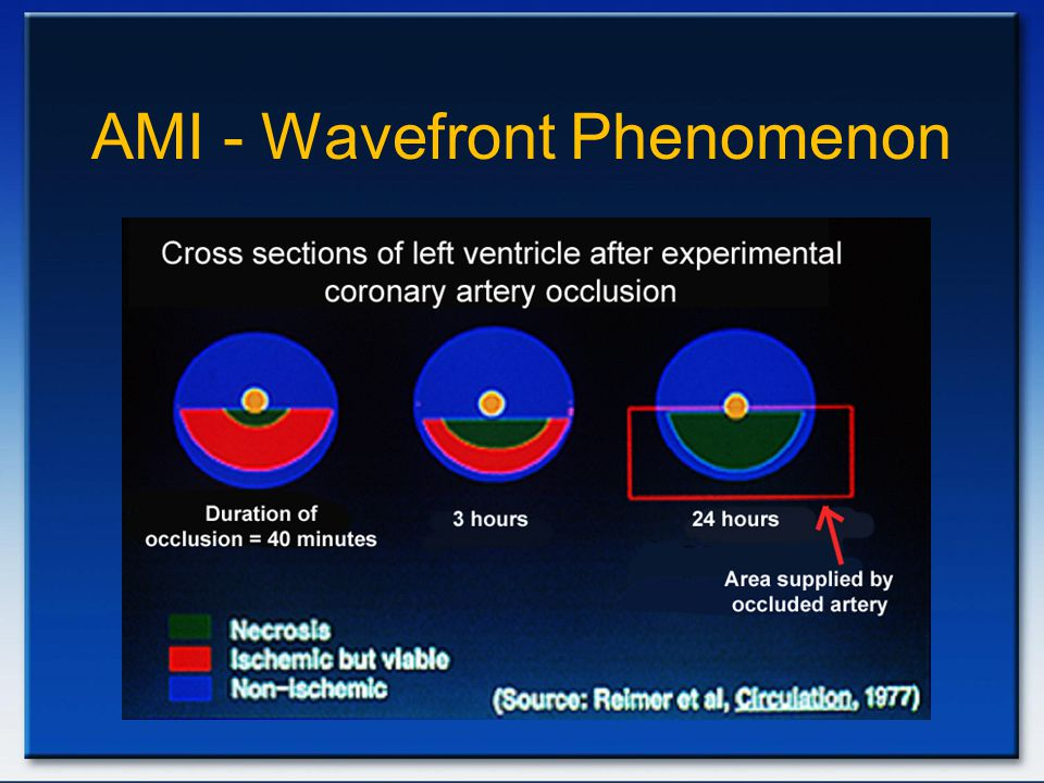 AMI - Wavefront Phenomenon