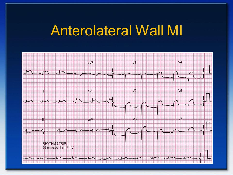 Anterolateral Wall MI Anterior AMI
