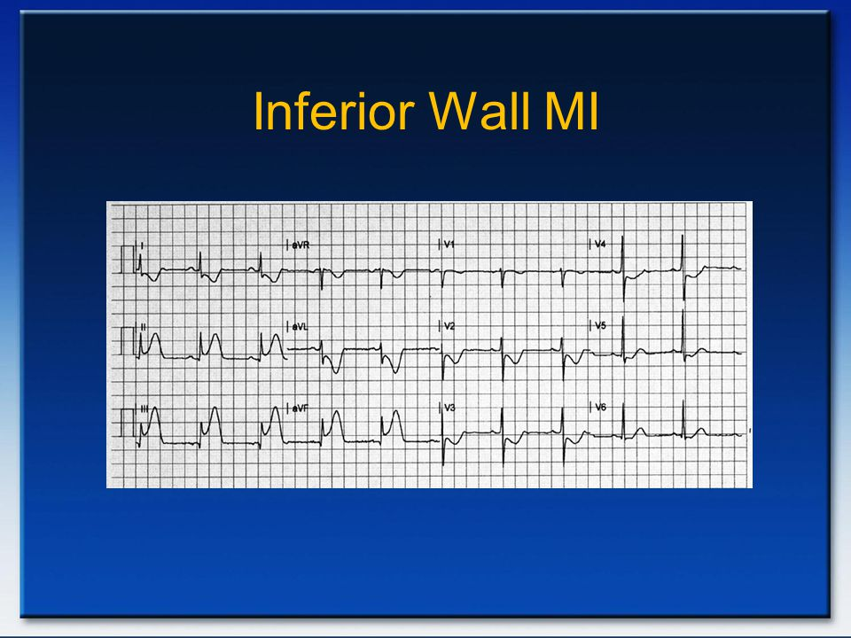 Inferior Wall MI Inferior AMi