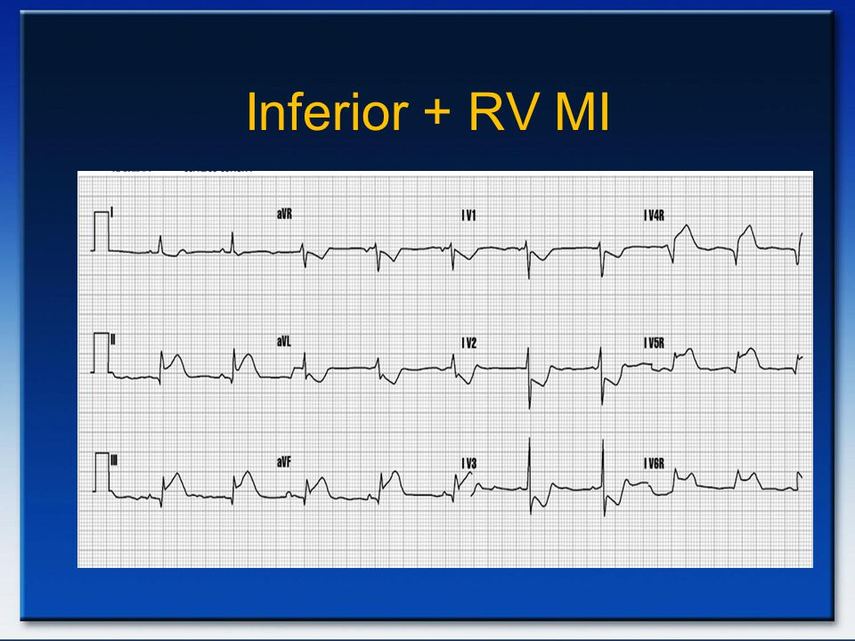 Inferior + RV MI Inferolateral AMI