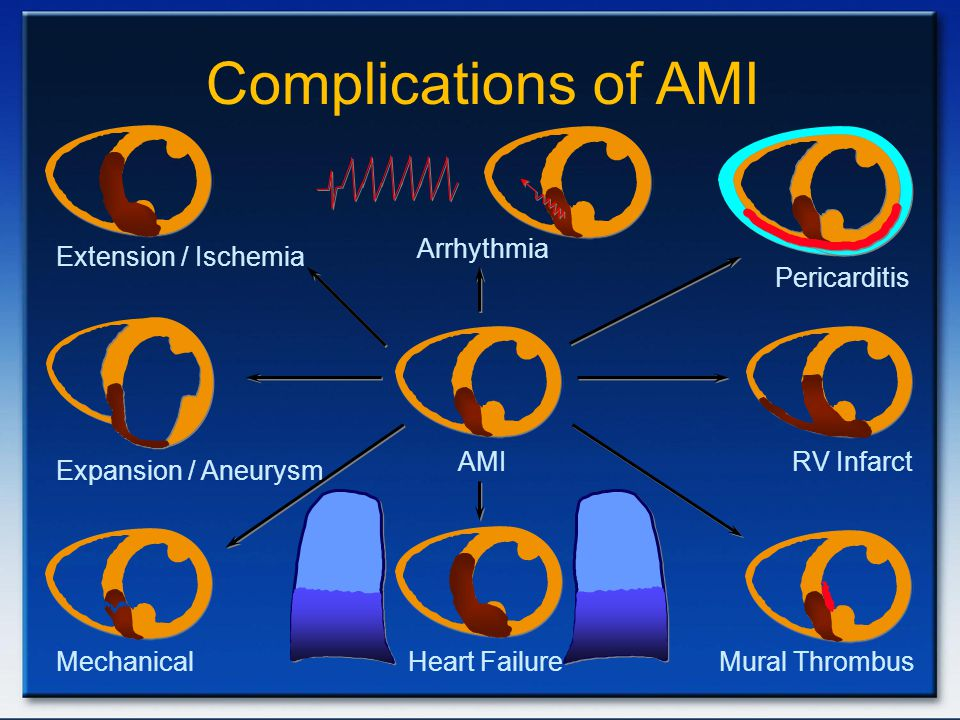 Complications of AMI Extension / Ischemia Arrhythmia Pericarditis