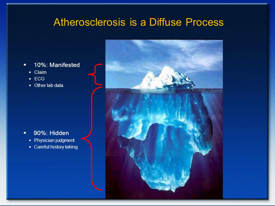 Atherosclerosis is a Diffuse Process