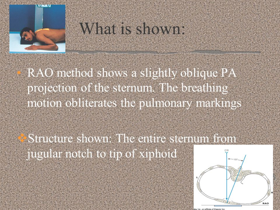 What is shown: RAO method shows a slightly oblique PA projection of the sternum. The breathing motion obliterates the pulmonary markings.