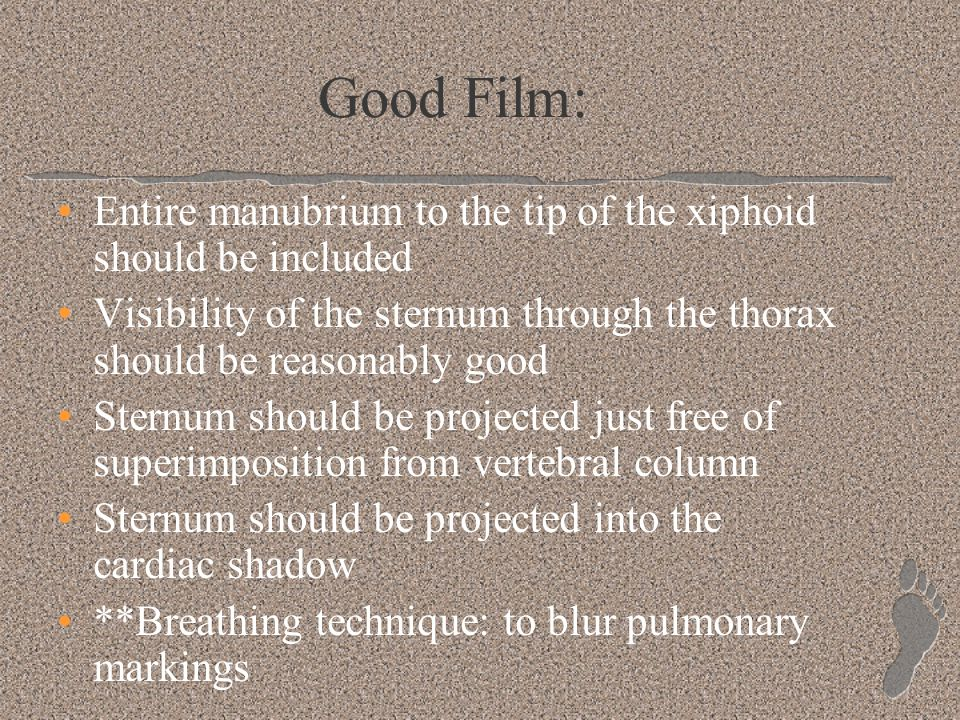 Good Film: Entire manubrium to the tip of the xiphoid should be included. Visibility of the sternum through the thorax should be reasonably good.