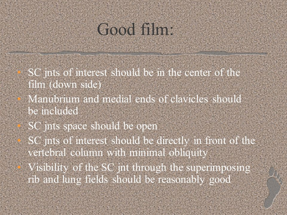 Good film: SC jnts of interest should be in the center of the film (down side) Manubrium and medial ends of clavicles should be included.