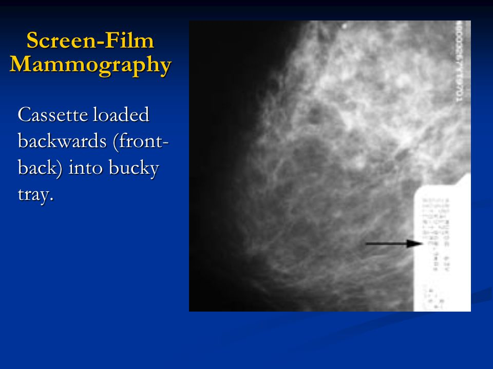 Screen-Film Mammography