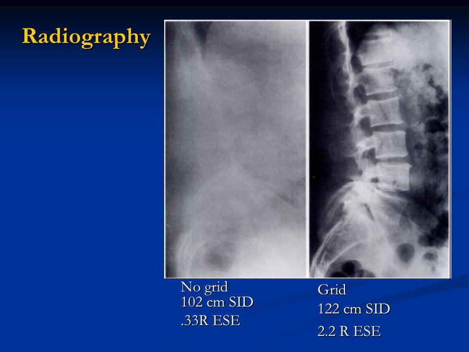 Radiography No grid 102 cm SID .33R ESE Grid 122 cm SID 2.2 R ESE