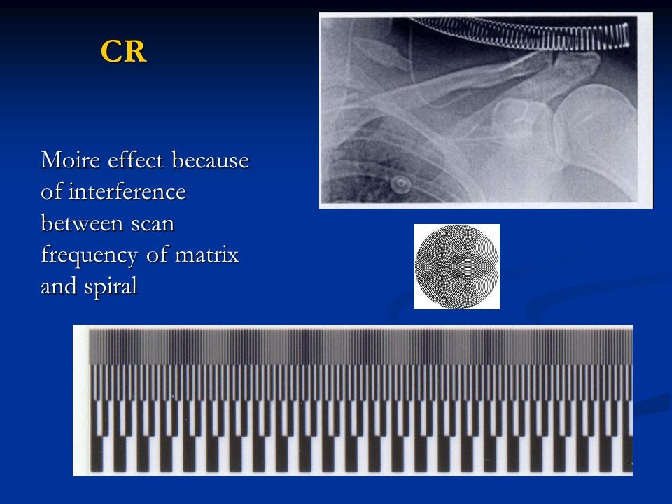 CR Moire effect because of interference between scan frequency of matrix and spiral