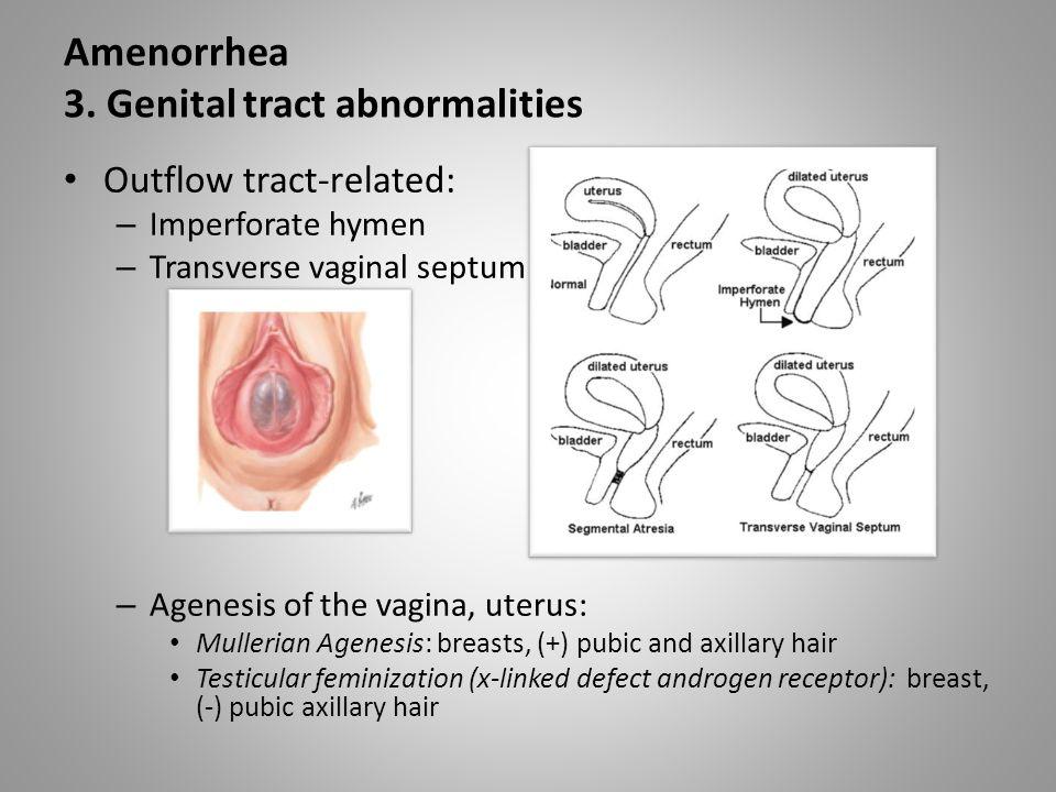 Amenorrhea 3. Genital tract abnormalities