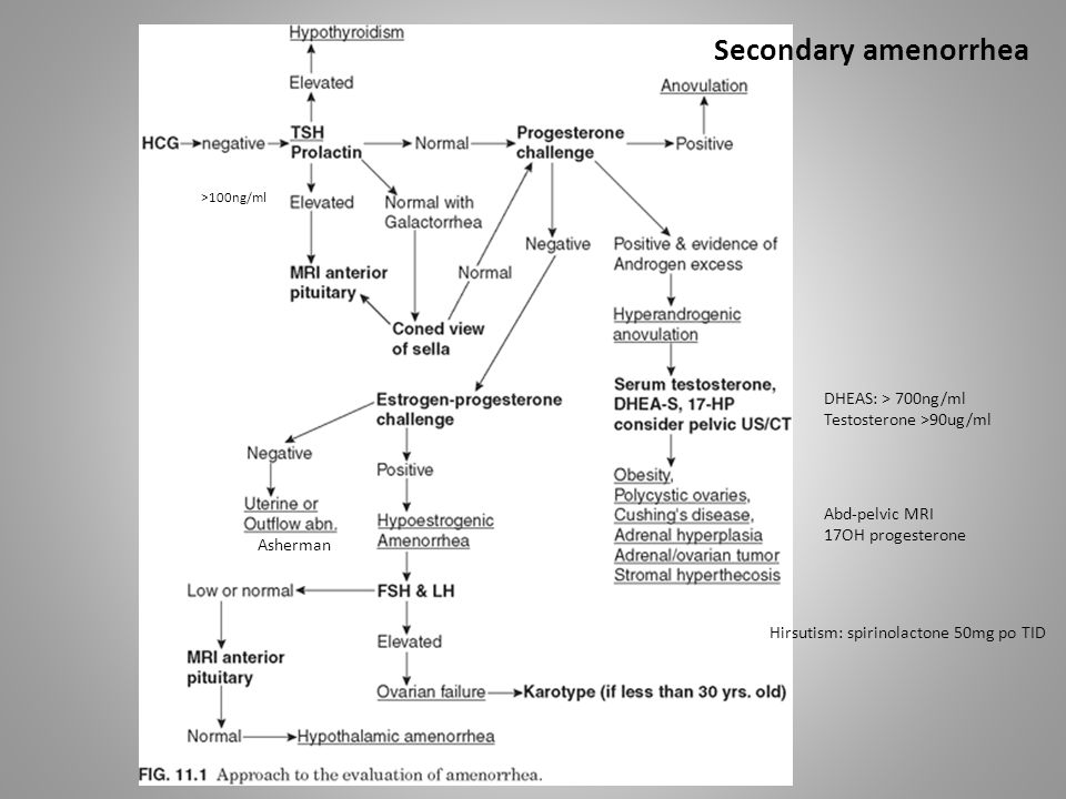 Secondary amenorrhea DHEAS: > 700ng/ml Testosterone >90ug/ml
