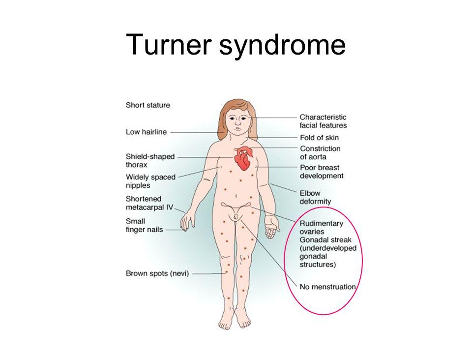 Turner syndrome