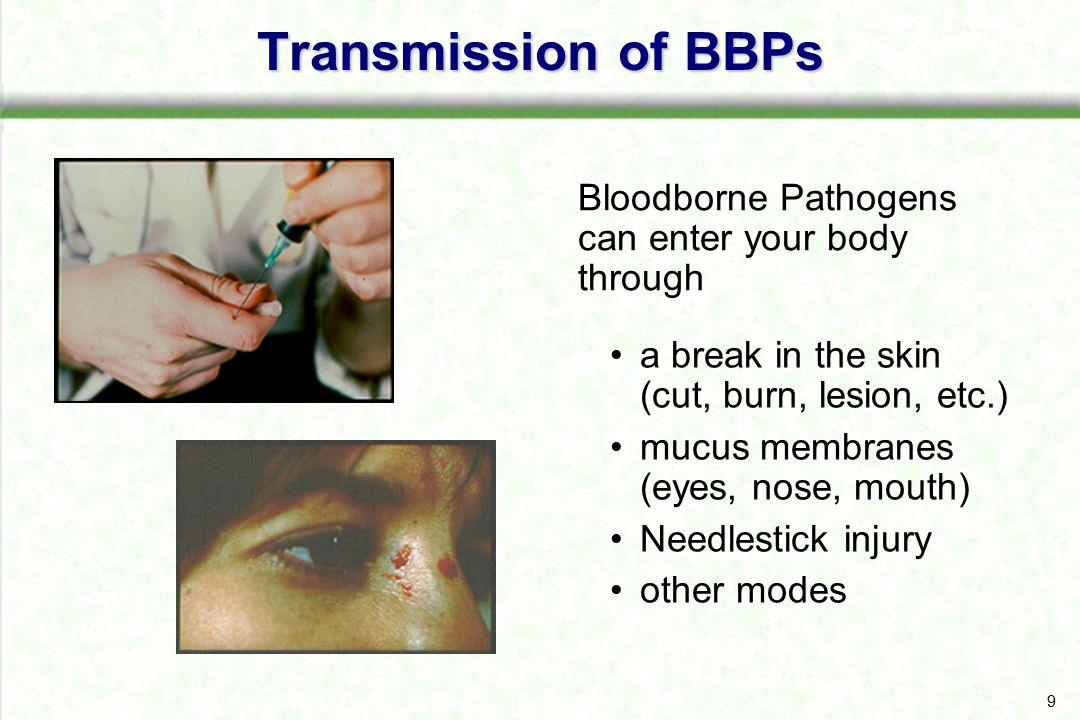 bloodborne pathogens and needlestick injuries