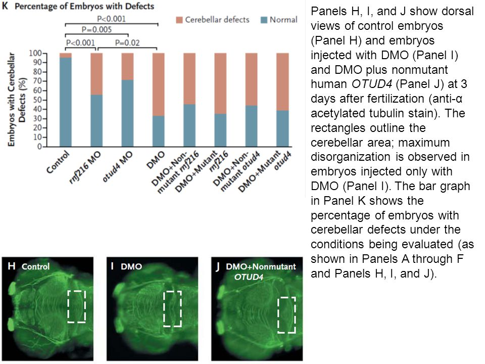 Panels H, I, and J show dorsal views of control embryos (Panel H) and embryos injected with DMO (Panel I) and DMO plus nonmutant human OTUD4 (Panel J) at 3 days after fertilization (anti-α acetylated tubulin stain).