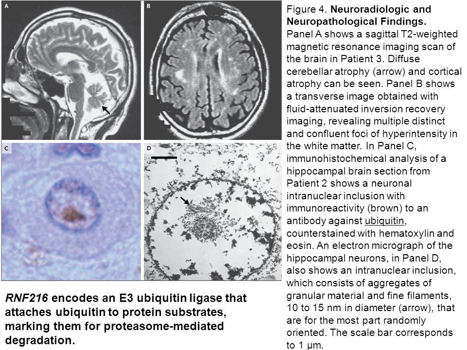 Figure 4. Neuroradiologic and Neuropathological Findings.