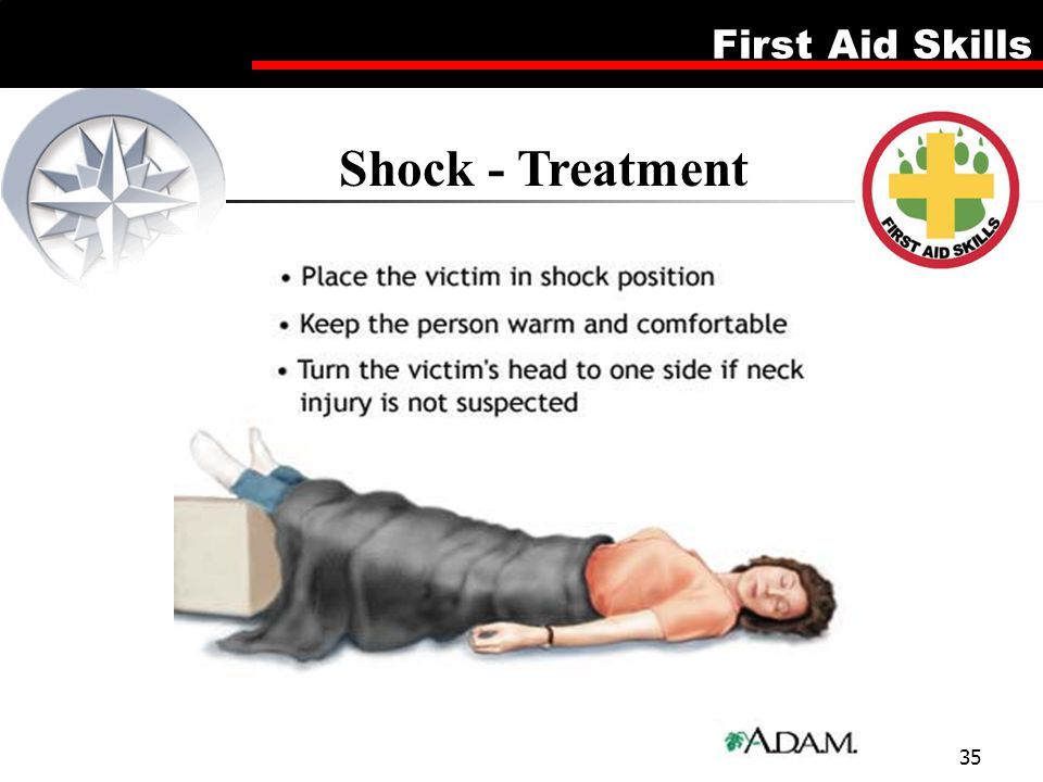 Shock - Treatment Illustration of keeping victim warm by covering with blanket and elevating legs 8 to 12 inches.