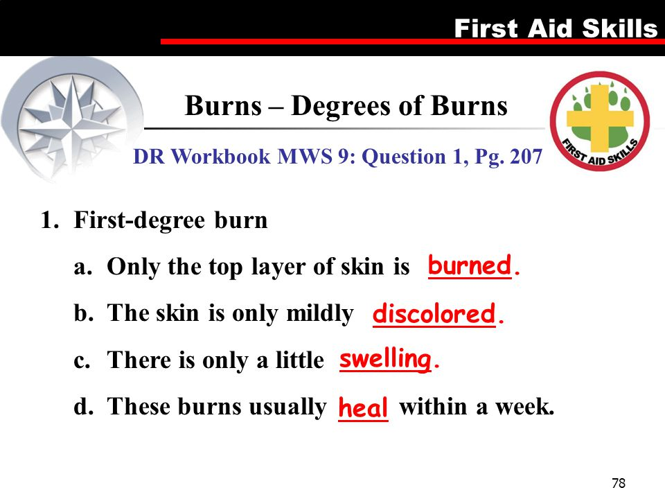 Burns – Degrees of Burns DR Workbook MWS 9: Question 1, Pg. 207