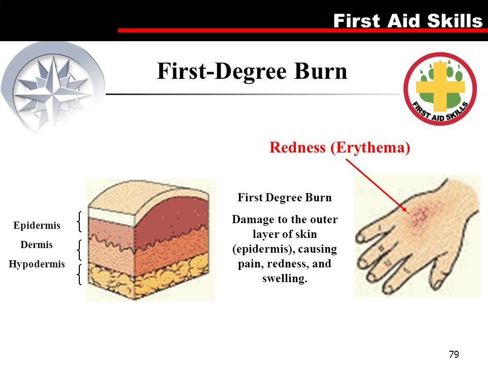 First-Degree Burn Redness (Erythema) First Degree Burn
