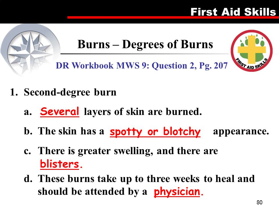 Burns – Degrees of Burns DR Workbook MWS 9: Question 2, Pg. 207
