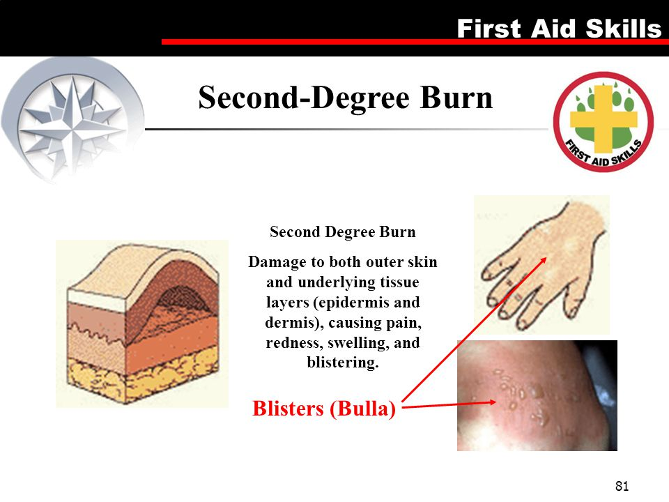 Second-Degree Burn Blisters (Bulla) Second Degree Burn
