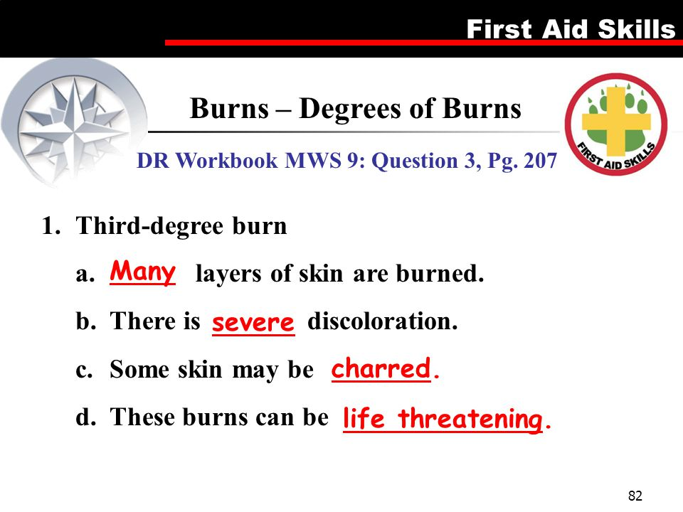 Burns – Degrees of Burns DR Workbook MWS 9: Question 3, Pg. 207