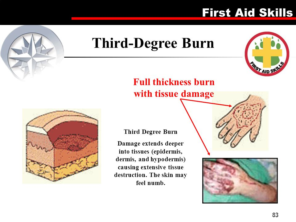 Full thickness burn with tissue damage