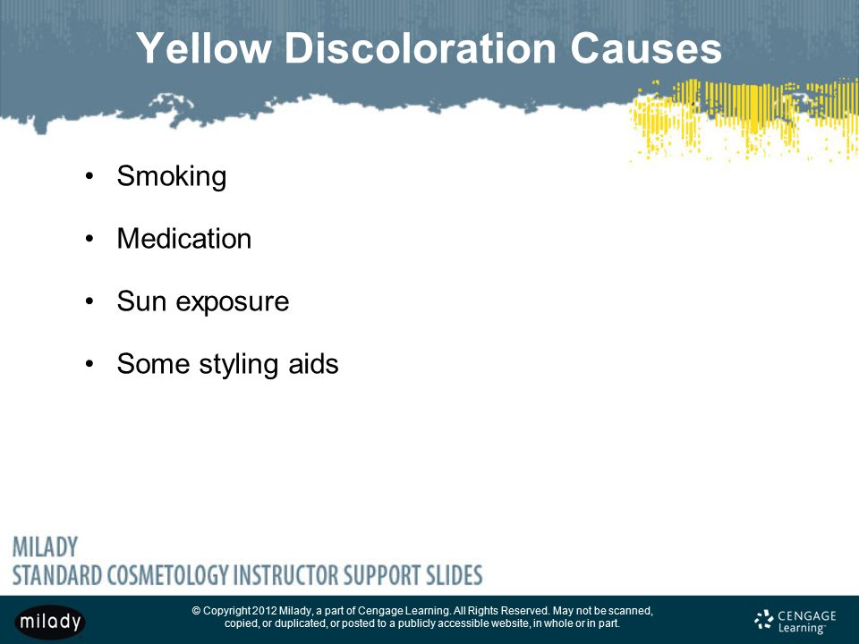 Yellow Discoloration Causes