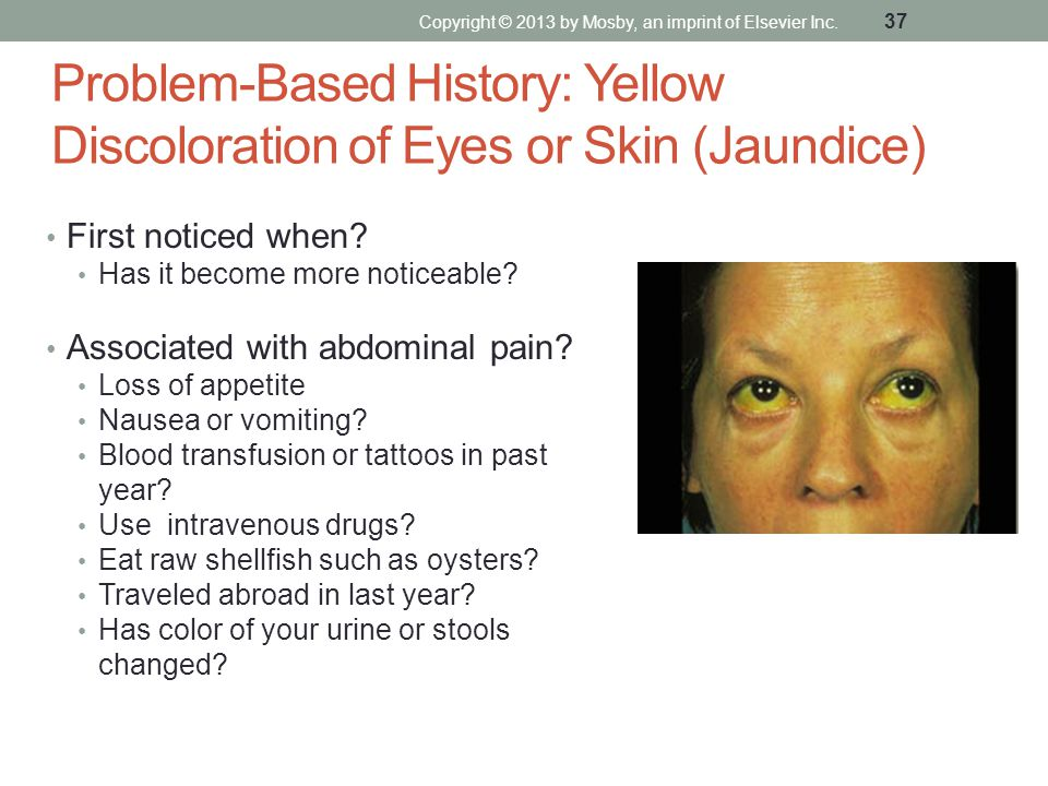 Problem-Based History: Yellow Discoloration of Eyes or Skin (Jaundice)