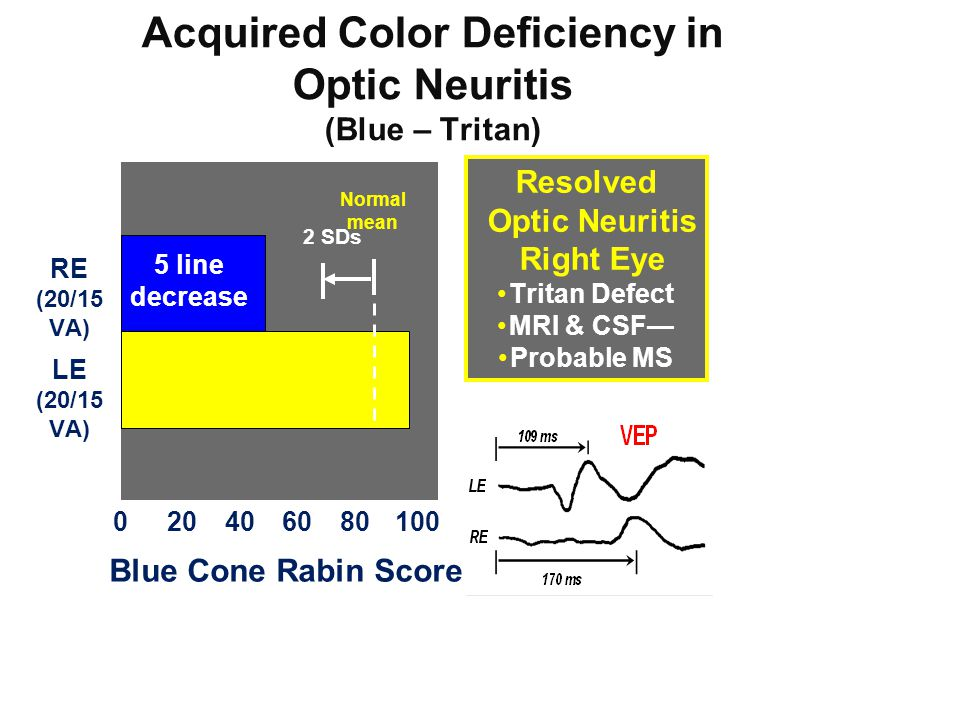Acquired Color Deficiency in Optic Neuritis
