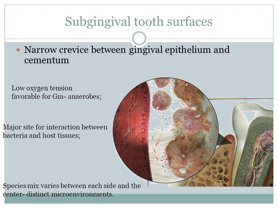 Subgingival tooth surfaces