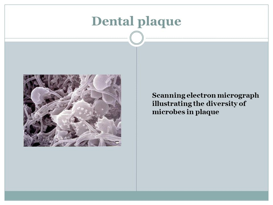 Dental plaque Scanning electron micrograph illustrating the diversity of microbes in plaque
