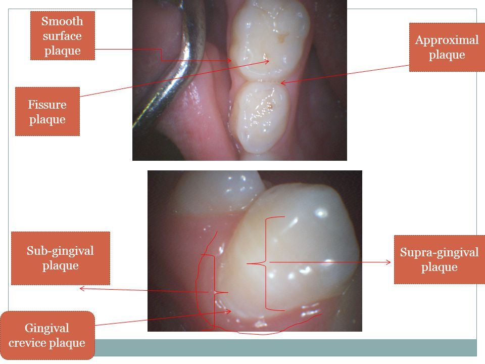 Supra-gingival plaque