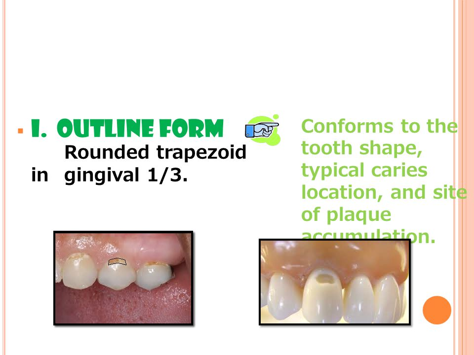I. OUTLINE FORM Rounded trapezoid in gingival 1/3.