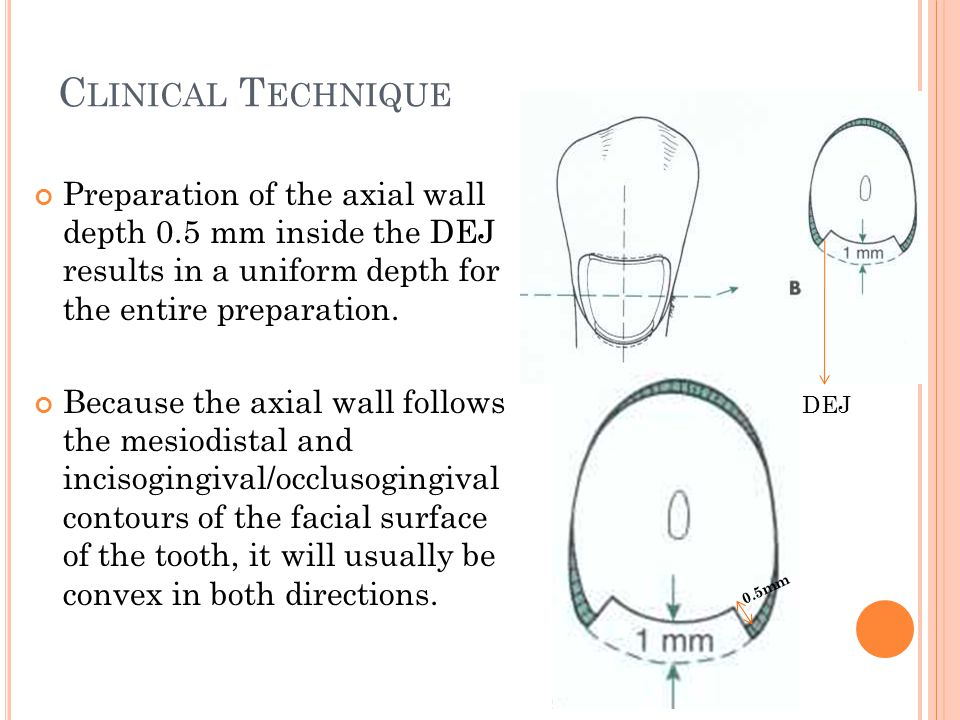 Clinical Technique Preparation of the axial wall depth 0.5 mm inside the DEJ results in a uniform depth for the entire preparation.