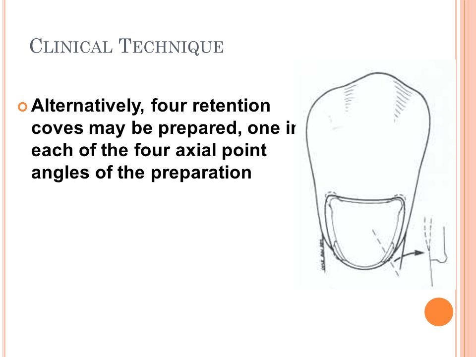 Clinical Technique Alternatively, four retention coves may be prepared, one in each of the four axial point angles of the preparation.