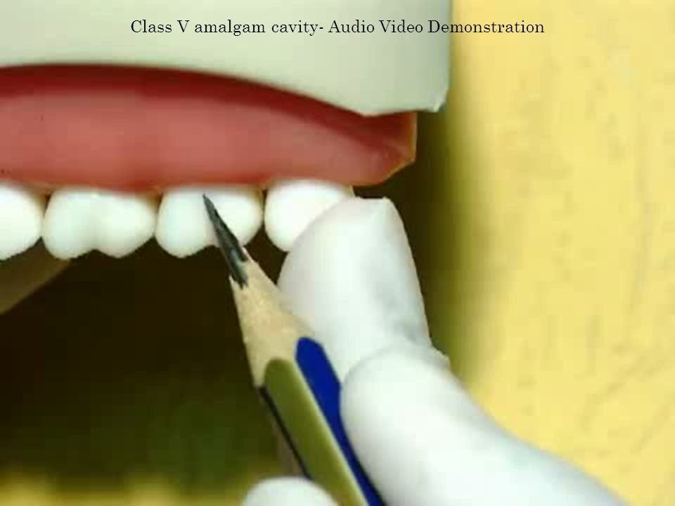 Class V amalgam cavity- Audio Video Demonstration