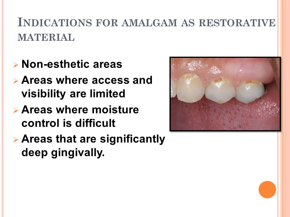 Indications for amalgam as restorative material