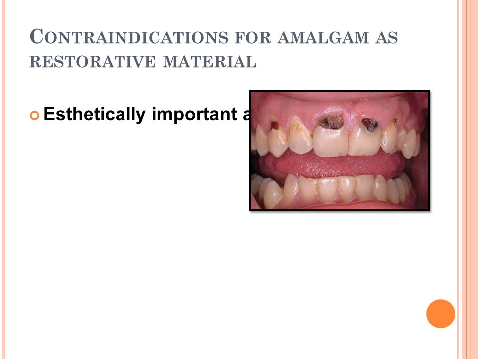 Contraindications for amalgam as restorative material