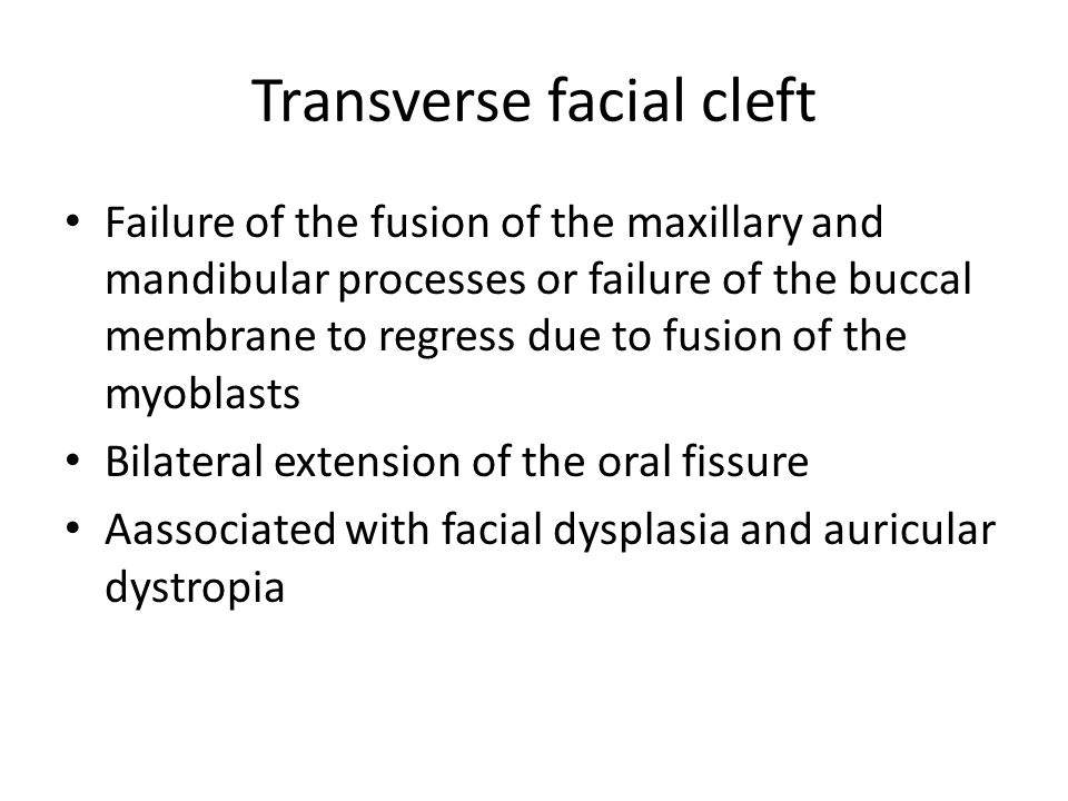 Transverse facial cleft
