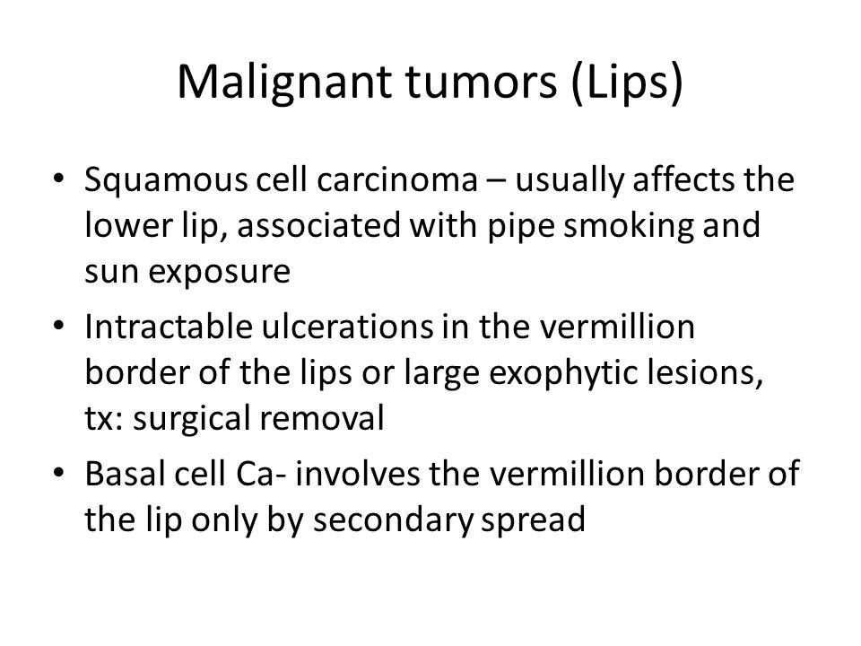 Malignant tumors (Lips)