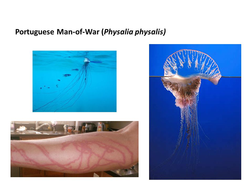 Portuguese Man-of-War (Physalia physalis)