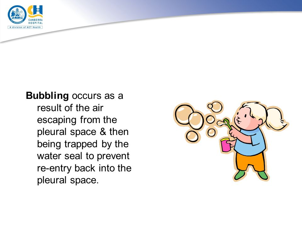Bubbling occurs as a result of the air escaping from the pleural space & then being trapped by the water seal to prevent re-entry back into the pleural space.