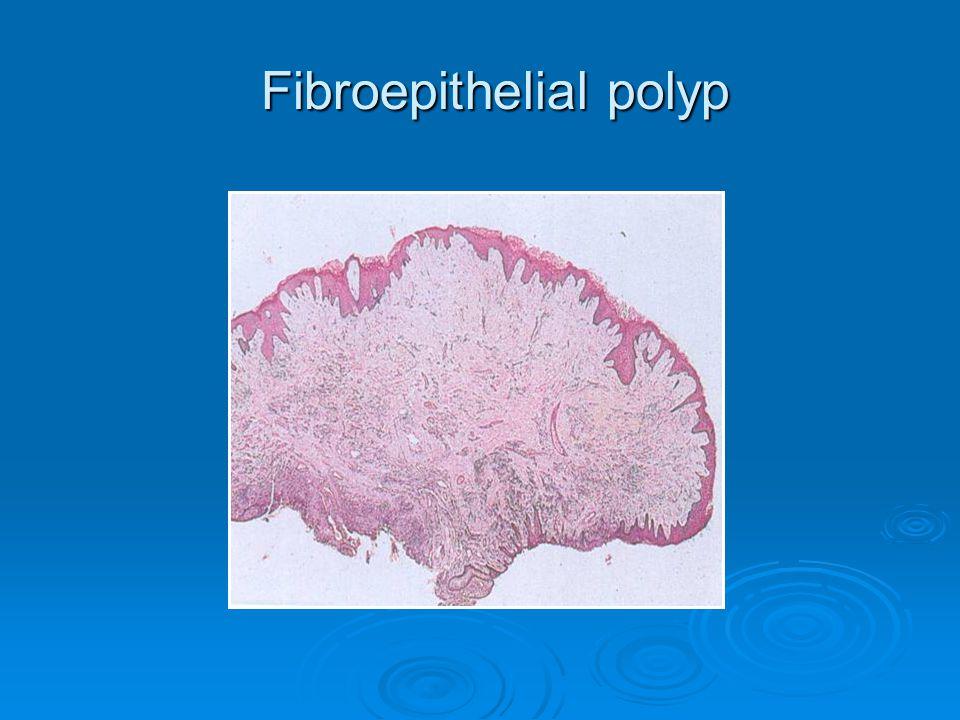 Fibroepithelial polyp