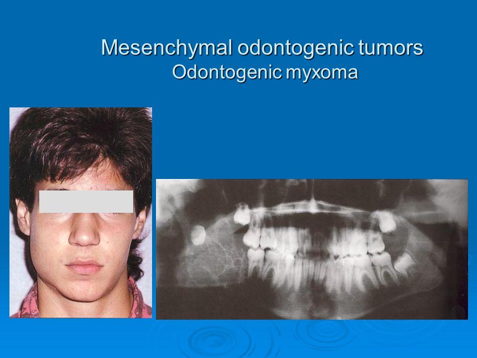Mesenchymal odontogenic tumors Odontogenic myxoma