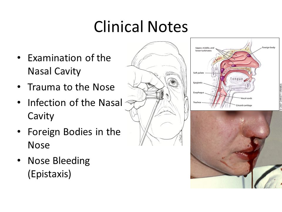 Clinical Notes Examination of the Nasal Cavity Trauma to the Nose